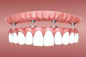 Implantologue dentaire : difficultés rencontrées et diverses solutions